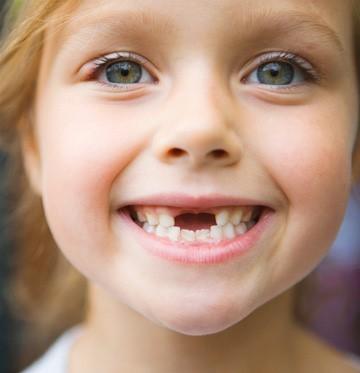 ترمیم دندانهای شیری