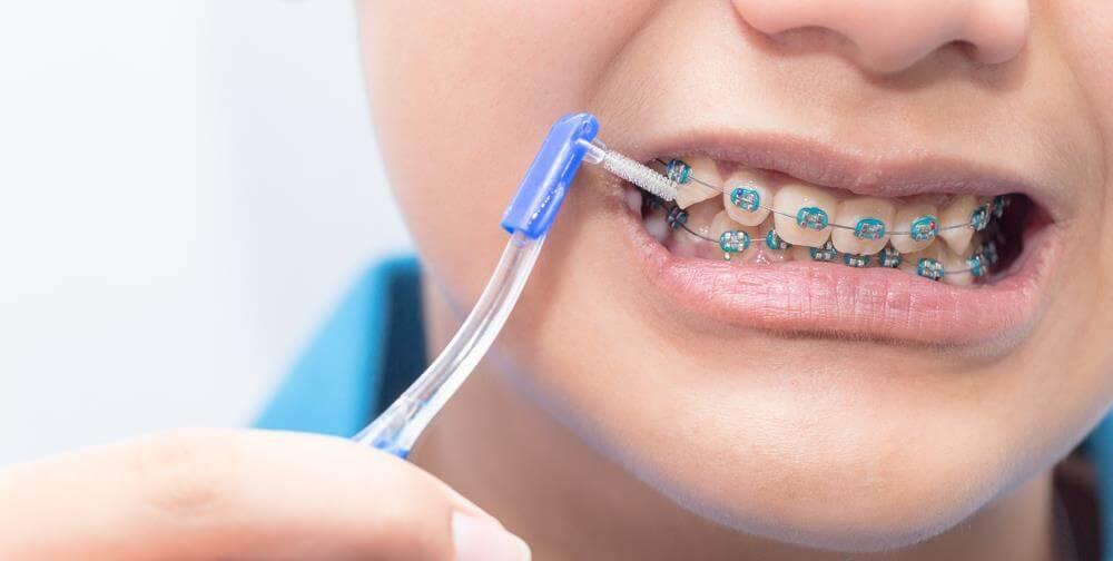 نصب براکت ها بر روی دندان ها