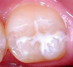 عصب کشی دندان ها