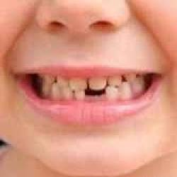 دندان شش سالگی