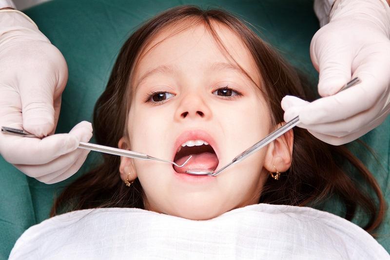 پوسیدگی دندان های شیری