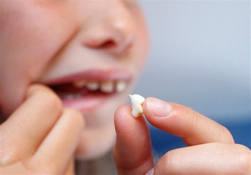 شکستگی دندانها در اثر حوادث