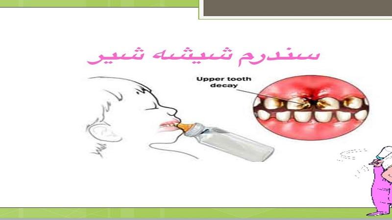سندرم شیشه شیر (پیشگیری از این سندرم)