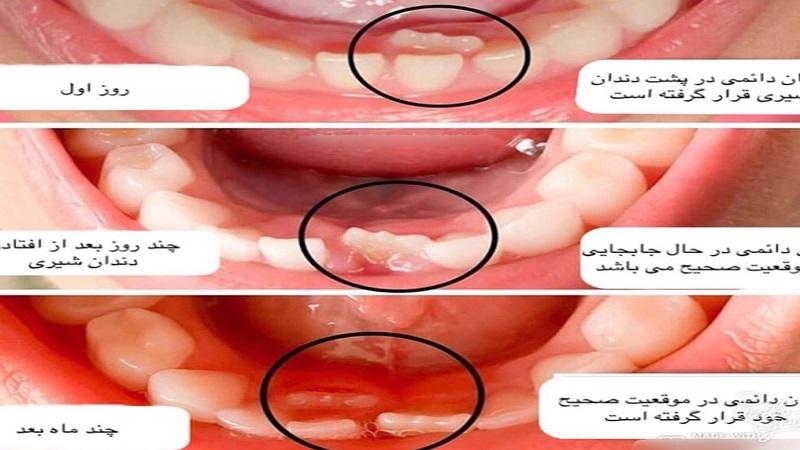 علت رویش نامرتب دندان های کودکان؟