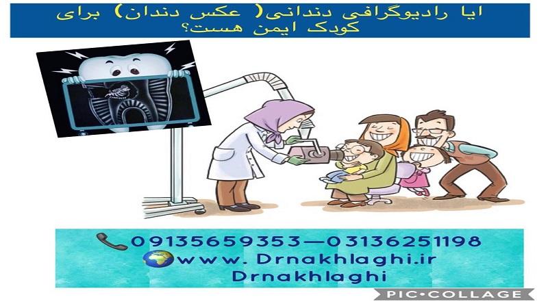 آیا رادیوگرافی دندانی برای کودک ایمن است؟