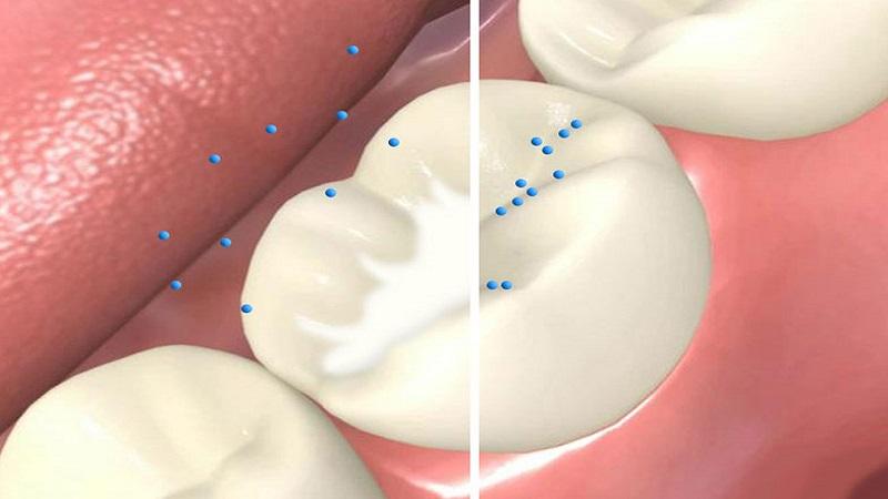 شیاربندی دندان (فیشورسیلانت) چیست؟