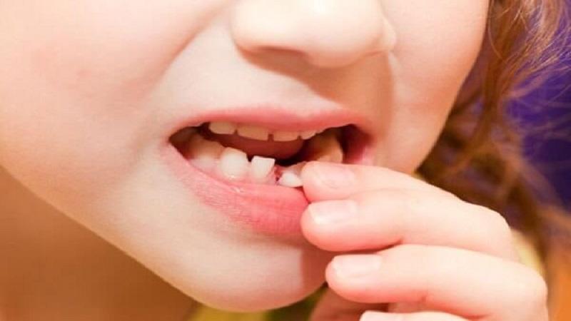 علت دیر افتادن دندان شیری چیست؟