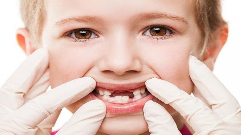 پس از کشیدن دندان شیری کودک