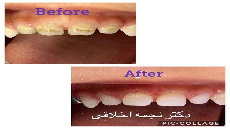 درمان ریشه و ترمیم کامپوزیت دندانهای جلو شیری با بیهوشی
