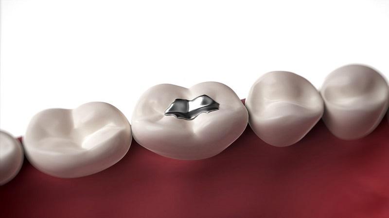 آمالگام کاربردی در دندانپزشکی چیست ؟