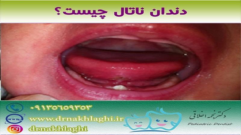 دندان ناتال