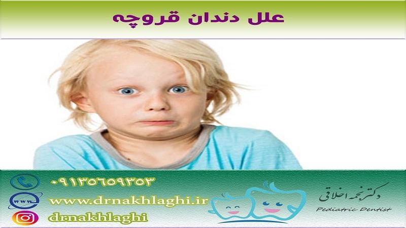 دندان قروچه یا براکسیسم