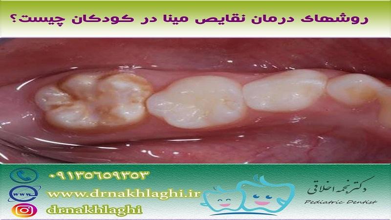 درمان نقص مینا دندان با این روش ها