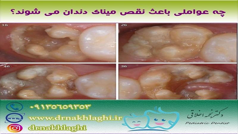 متخصص دندانپزشکی کودکان چه عواملی باعثنقص مینای دندانمی شوند؟