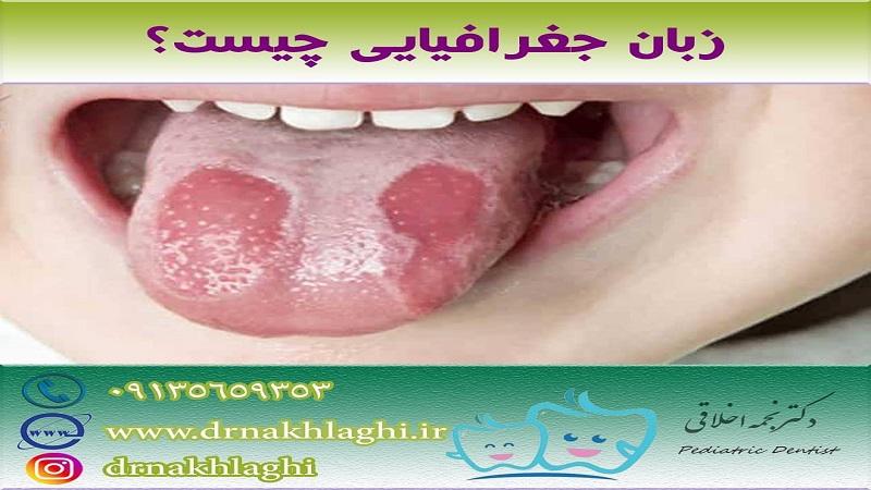 متخصص دندانپزشکی کودکان زبان جغرافیایی چیست؟