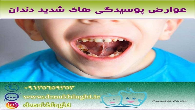 عوارض پوسیدگی های شدید دندان