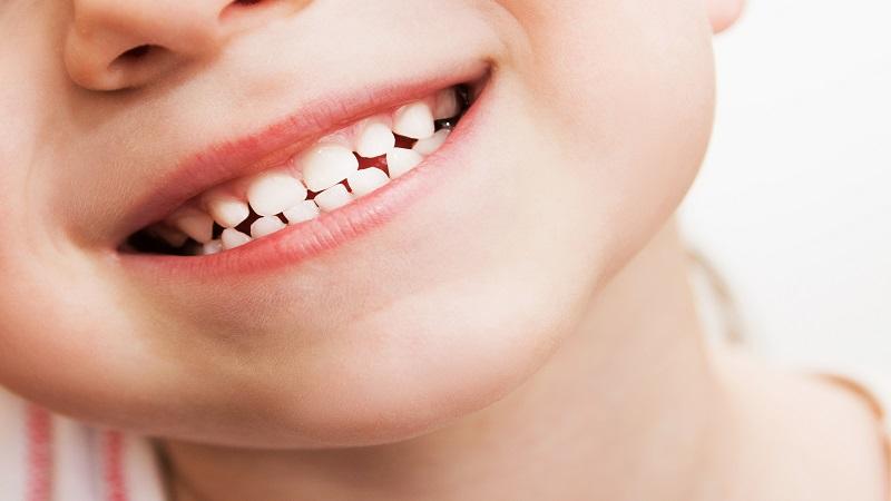 دندانپزشک کودکان اصفهان | تغییر رنگ دندان ها کودکان
