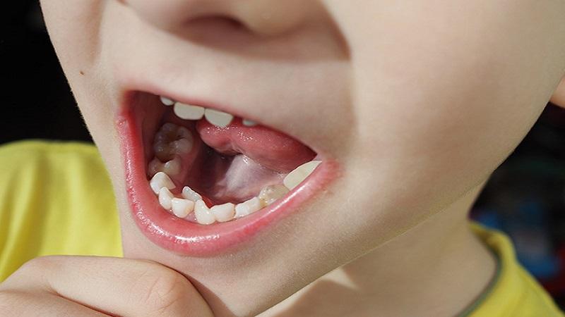 دندانپزشک کودکان اصفهان |دندان کوسه ای یا رویش دندان دائمی پشت دندان شیری