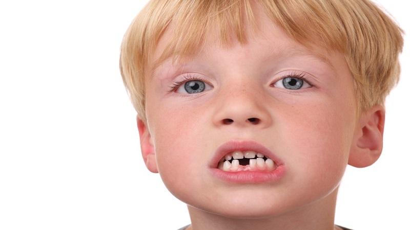 دندانهای دائمی و دلایل رشد نکردن آن در کودکان | دندانپزشک کودکان اصفهان