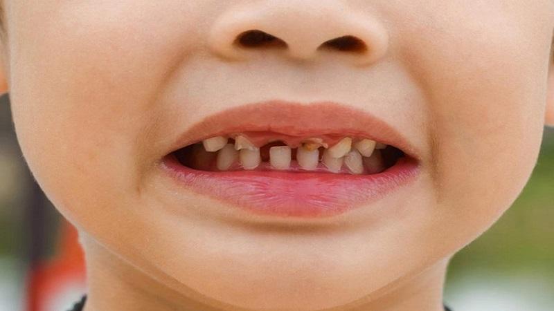 پوسیدگی دندان کودکان-چگونگی بوجود آمدن پوسیدگی | دندانپزشک کودکان اصفهان