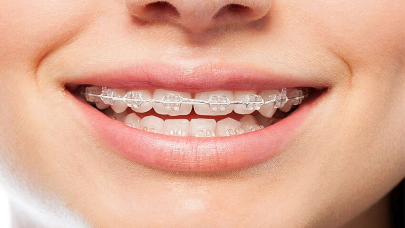 انواع ارتودنسی کودکان-مدت زمان داشتن ارتودنسی | دندانپزشک کودکان اصفهان