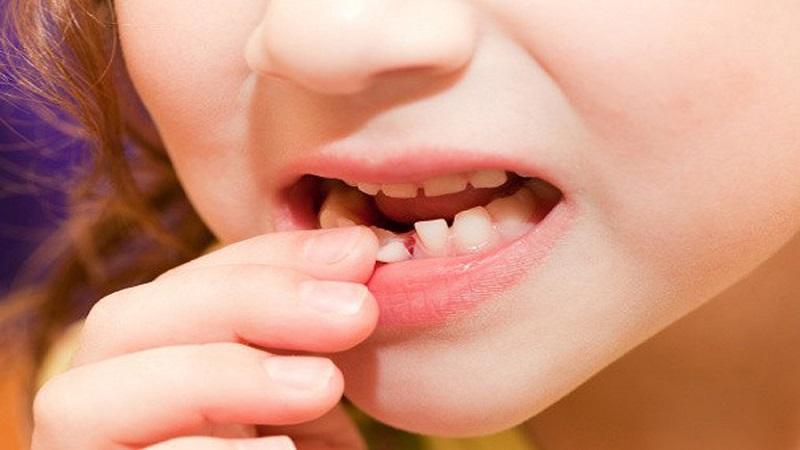دندان لق در کودکان-علت و عوارض آن در دراز مدت | دندانپزشک کودکان اصفهان