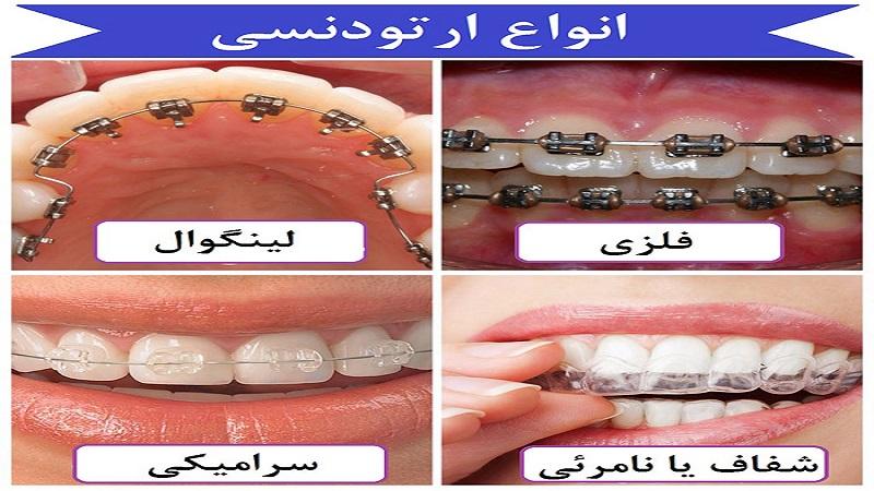 انواع ارتودنسی کودکان-مدت زمان داشتن ارتودنسی   دندانپزشک کودکان اصفهان