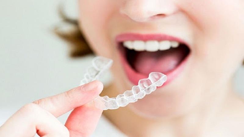 مزایای ارتودنسی نامرئی در کودکان و مراقبت در این دوره   دندانپزشک کودکان اصفهان