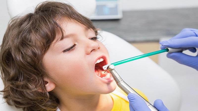 ترمیم همرنگ دندان یا کامپوزیت دندان چیست؟ | دندانپزشک کودکان اصفهان