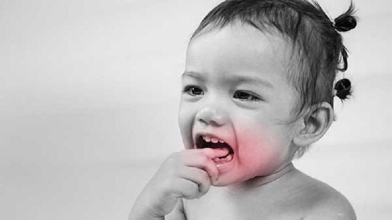 التهاب لثه در کودکان و انواع آن | دندانپزشک کودکان اصفهان
