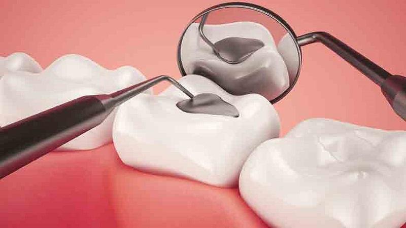 ویژگیهای ترمیم همرنگ دندان کودکان و معایب آن | دندانپزشک کودکان اصفهان