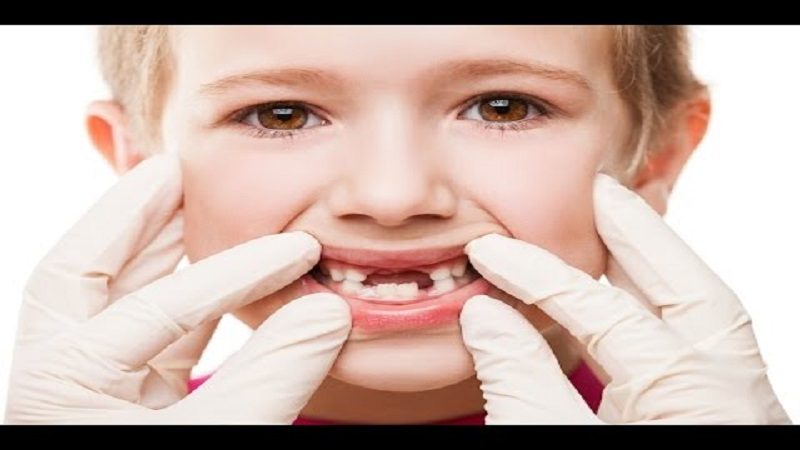 Trauma or sudden impact of a tooth | Isfahan Children's Dentist,,fa,What is pulp?,,fa,How to make a child happy with dentistry?,,fa,August 23,,fa