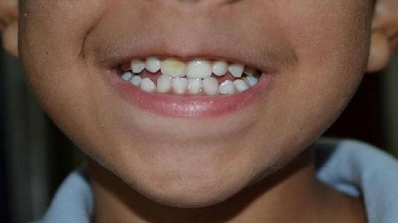 پیشگیری از فلوروزیس در کودک | دندانپزشک کودکان اصفهان