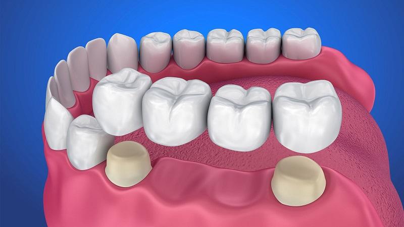 بریج دندان | دندانپزشک کودکان اصفهان