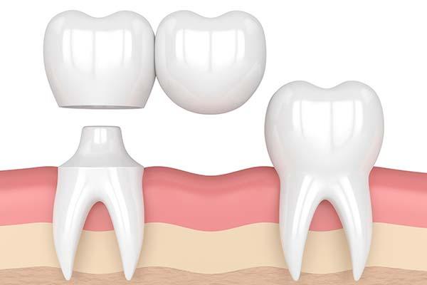 بریج دندان کودکان | دندانپزشک کودکان اصفهان