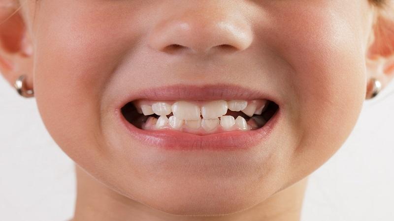 ایمپلنت دندان برای کودکان | دندانپزشک کودکان اصفهان