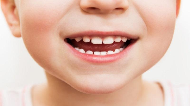 دندان های شیری و مراحل رویش و تکامل | دندانپزشک کودکان اصفهان