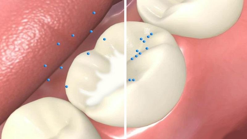 فیشور سیلانت و پیشگیری از پوسیدگی دندان کودکان   دندانپزشک کودکان اصفهان