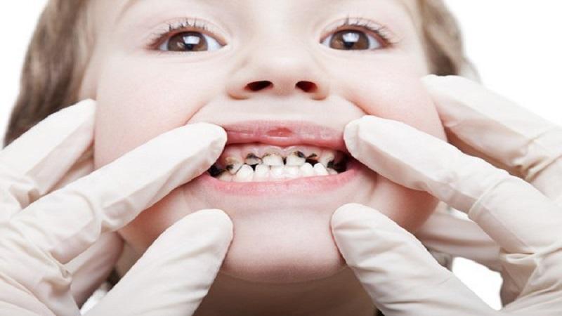 سیاه شدن دندان کودکان | دندانپزشک کودکان اصفهان