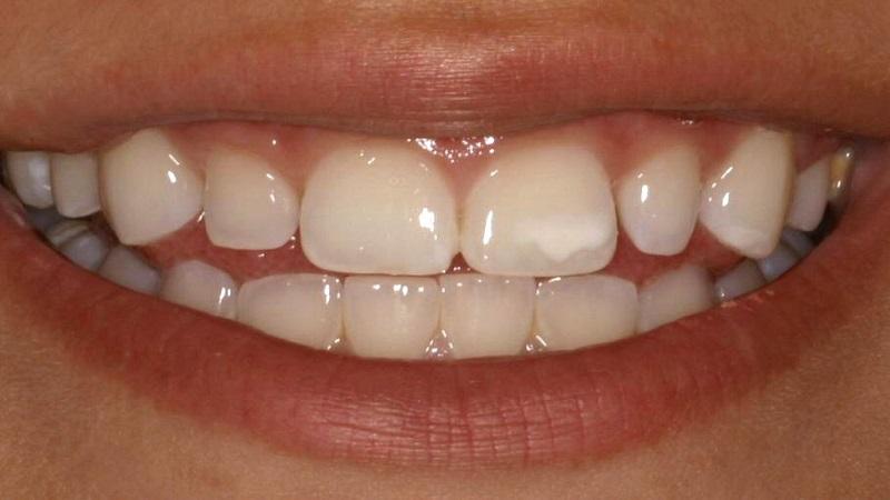 انواع لکه های روی دندان | دندانپزشک کودکان اصفهان