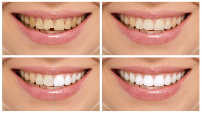 What is tooth bonding? | Isfahan Children's Dentist,,fa,What is pulp?,,fa,How to make a child happy with dentistry?,,fa,August 23,,fa