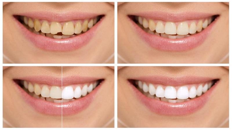 باندینگ دندان چیست | دندانپزشک کودکان اصفهان