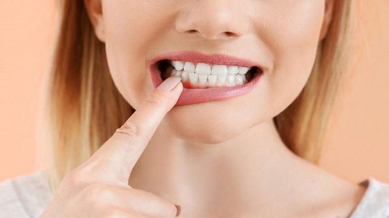 گزینههای درمانی آبسه | دندانپزشک کودکان اصفهان