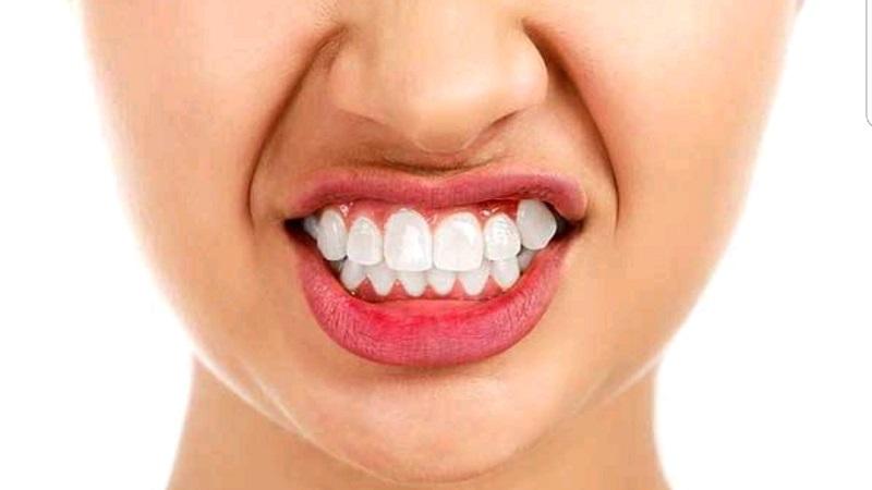 دندان قروچه، براکسیسم یا سایش دندانی | دندانپزشک کودکان اصفهان