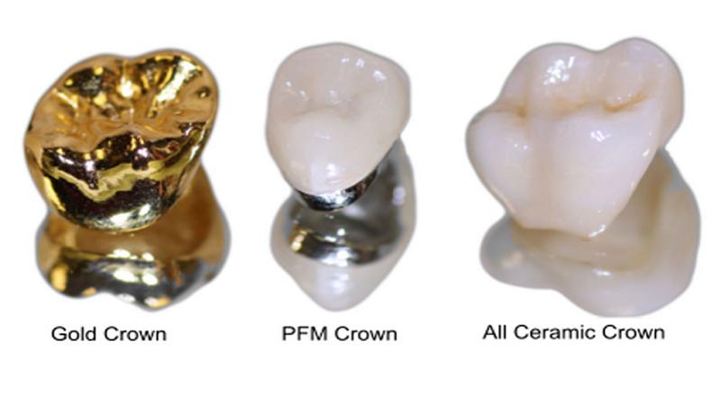 روکش دندان سرامیکی یا فلزی | دندانپزشک کودکان اصفهان