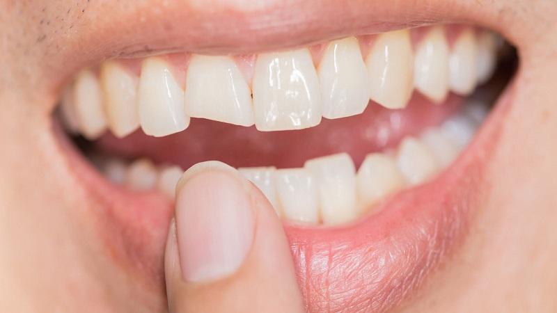 شکستن تاج دندان | دندانپزشک کودکان اصفهان