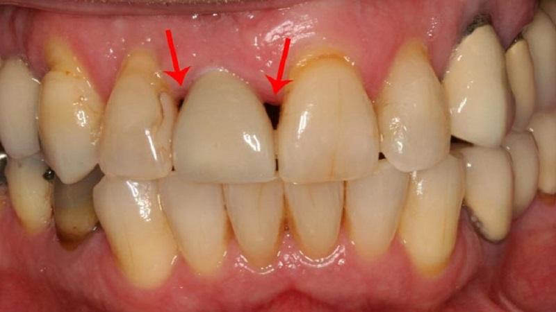 مثلث سیاه بین دندانی | دندانپزشک کودکان اصفهان