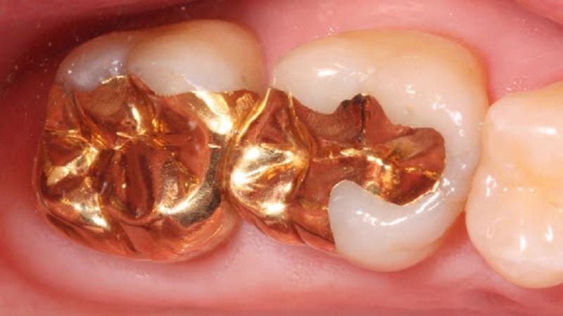 روکش دندان شیری | دندانپزشک کودکان اصفهان