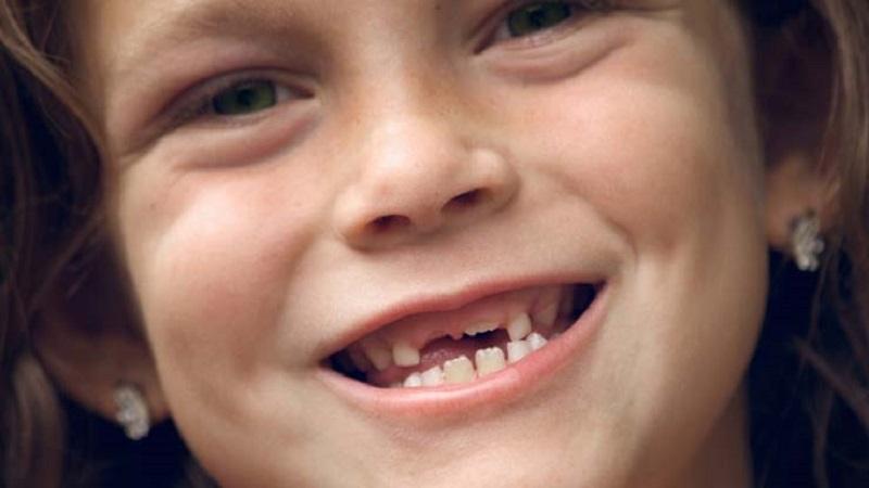 شکستگی دندان های شیری | دندانپزشک کودکان اصفهان