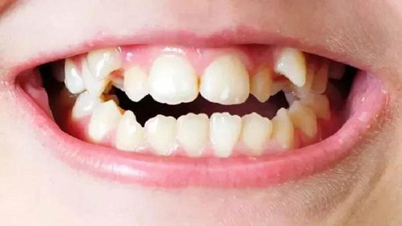 علل اختلالات ساختاری دندانها | دندانپزشک کودکان اصفهان